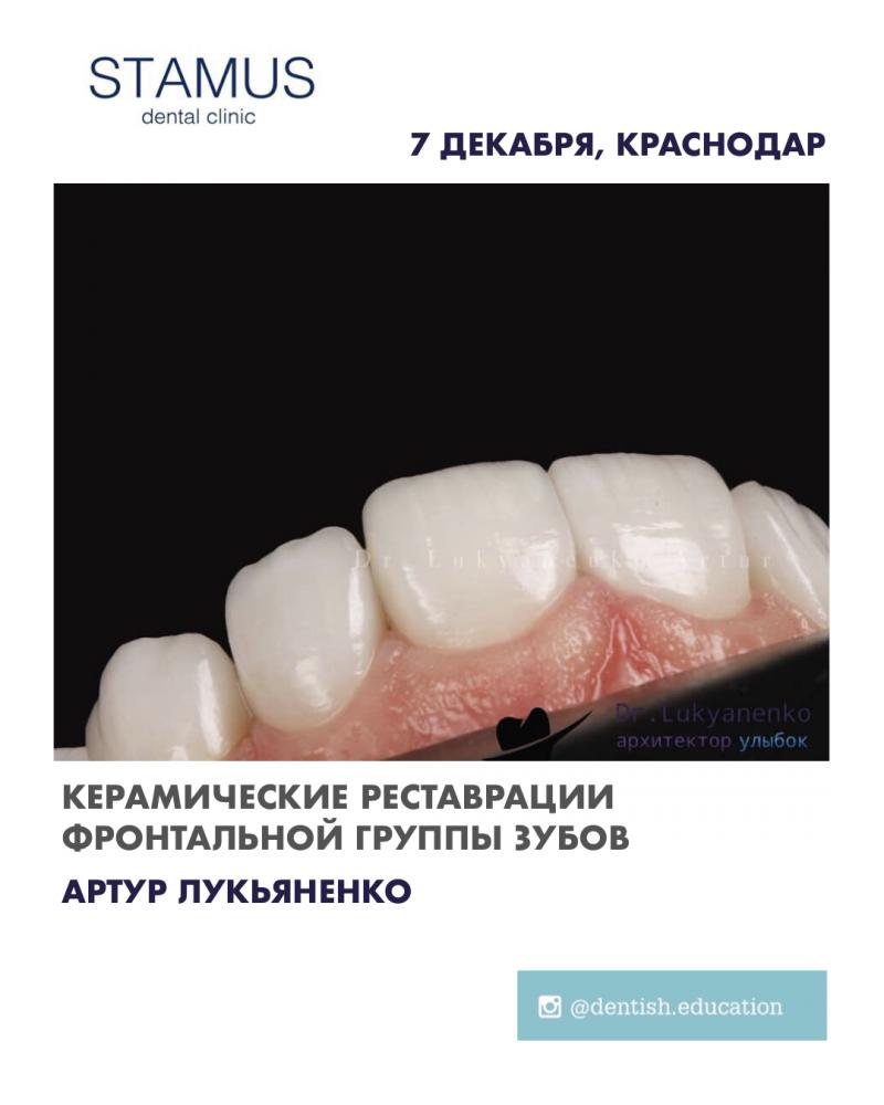Керамические реставрации фронтальной группы зубов