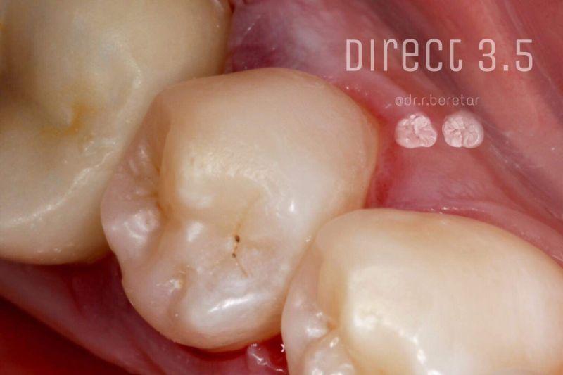 Direct Restoration, прямые реставрации боковой группы зубов