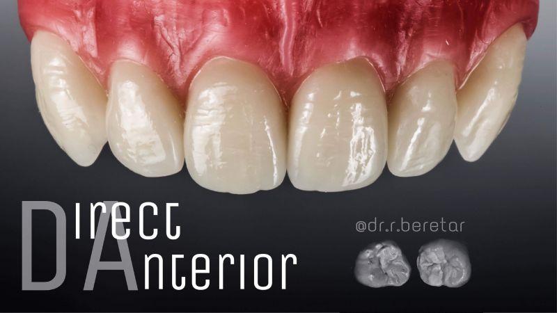 Direct Restoration, прямые реставрации фронтальной группы зубов