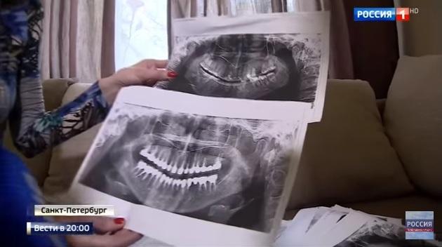 Про удаление 22 зубов: только факты глазами стоматолога и юриста
