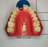 Анатомия улыбки. Реставрации фронтальной группы зубов