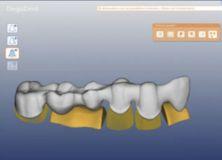 Cercon Eye Degudent стоматологический сканер CAD