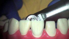Демонстрация препарирования зубов на фантоме с использованием микроскопа